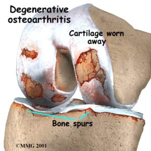 knee_osteoarth_anatomy02