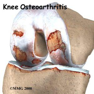 knie arthrose 2