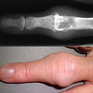 Vinger artrose