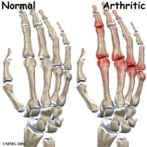 arthrose vinger