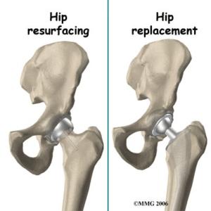 soorten heup prothese
